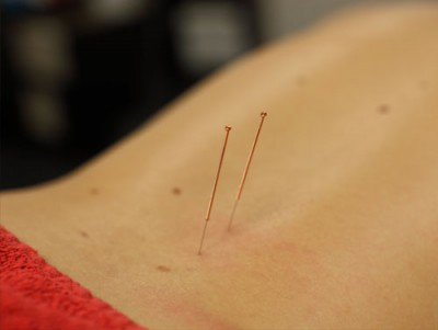 Fysiotherapie-Dry-Needling-Bomers-Borculo-Triggerpoints