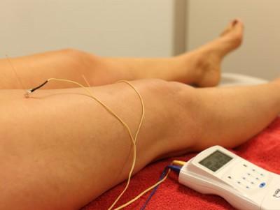 Fysiotherapie-Dry-Needling-Bomers-Borculo-met-stroom